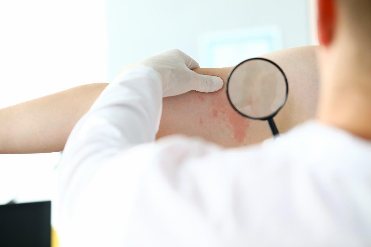 doctor inspecting rashes